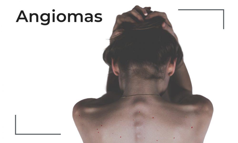 Cover de lunares rojos mostrando la espalda de una chica con angiomas
