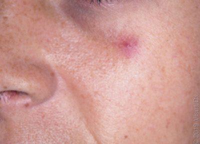 Araña vascular en la mejilla de una mujer