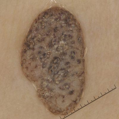 Dermatoscopia de queratosis seborreica o lunar con costra