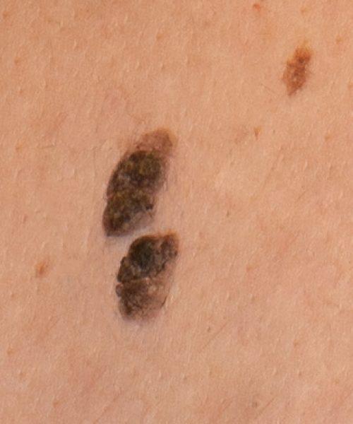 Queratosis seborreicas en un paciente que comentó que se le cayó una verruga