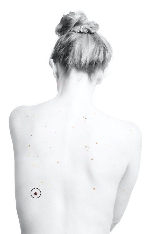 Espalda de una mujer que tiene lunares malignos con el signo del patito feo