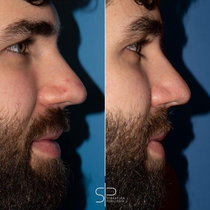 Tratamiento de arañas vasculares en la nariz